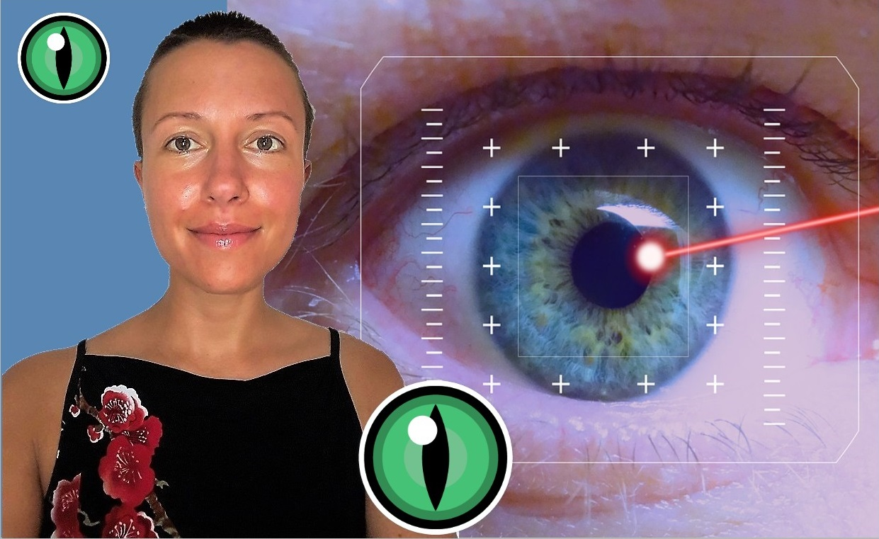Laser #eye #surgery to correct myopia: my experience 5 years afterwards Claire Samuel